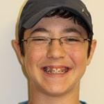 מטופלים מחייכים יישור שיניים (1)