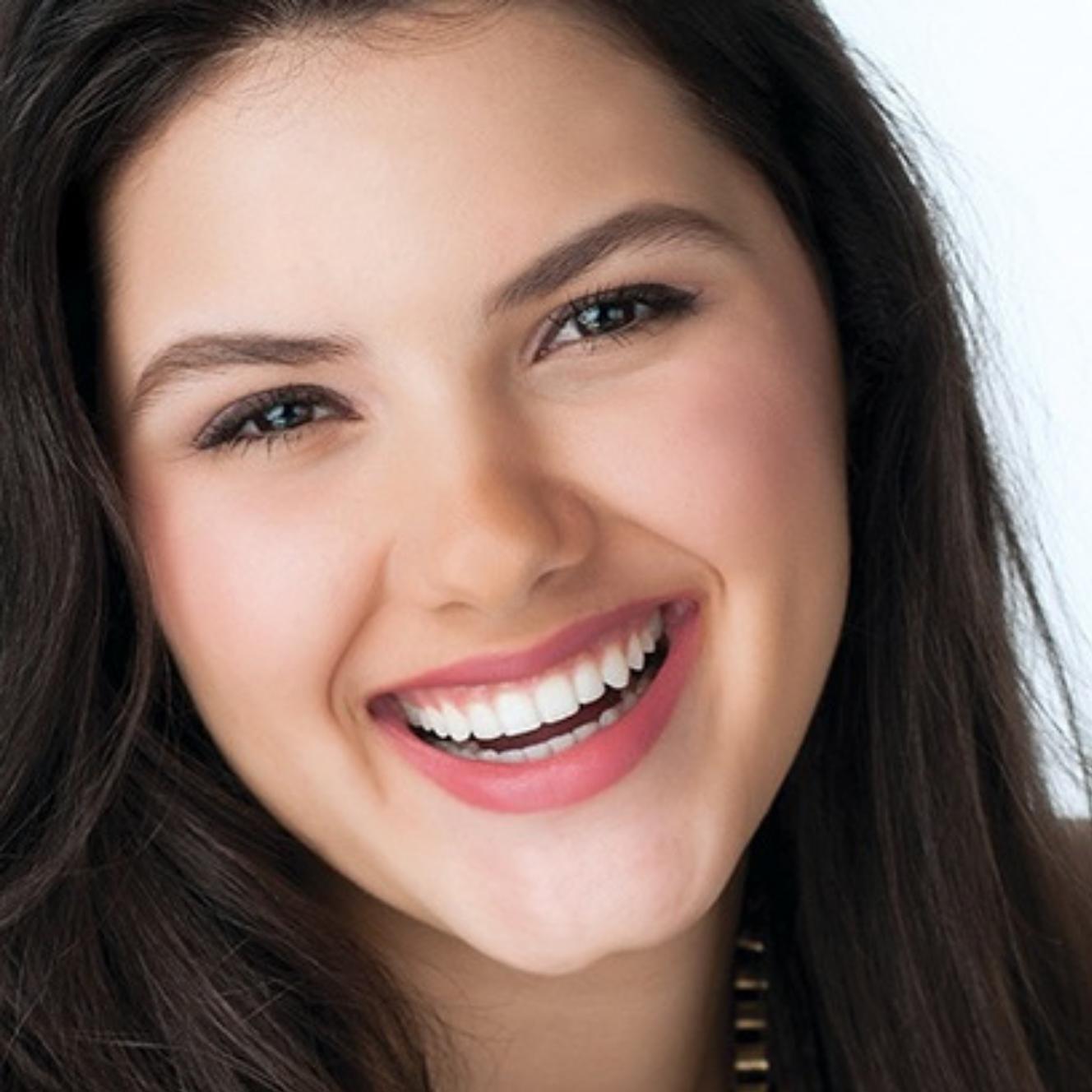 יישור שיניים בלתי נראה קשתיות שקופות