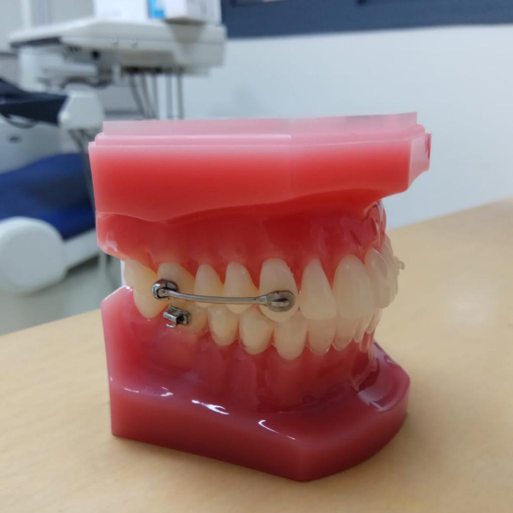 מושן- רסן פנימי ליישור שיניים