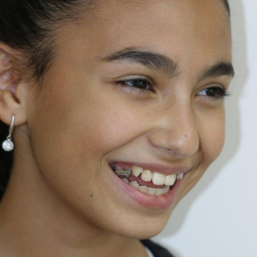 רסן פנימי שיטת המושן ליישור שיניים