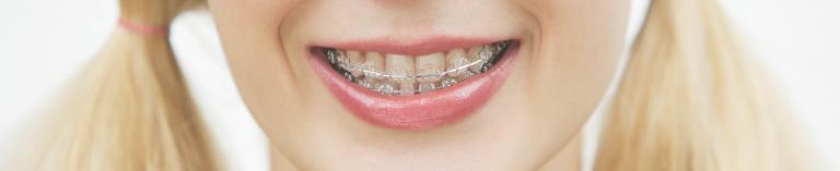 שיטות ליישור שיניים שקוף