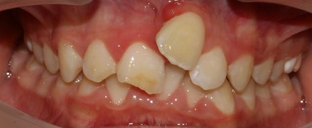 יישור שיניים לילדים משיכה עדינה של השן לקשת השיניים