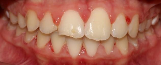 יישור שיניים לילדים גיל 8-10
