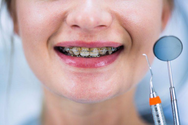 שיטות מתקדמות ליישור שיניים