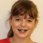 מטופלים מחייכים יישור שיניים (4)