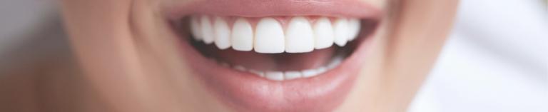 הלבנת שיניים וטיפול מחלות חניכיים