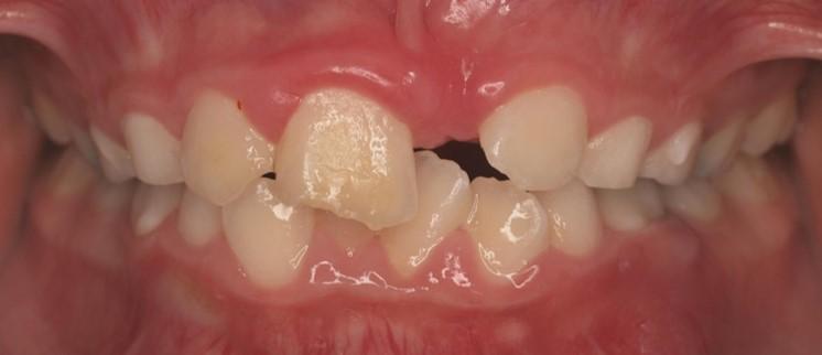 בן 10, שן קדמית לא צמחה